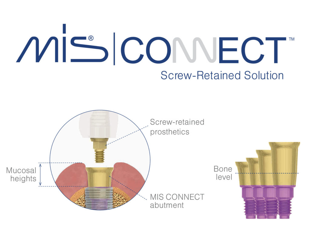 MIS CONNECT - Screw-Retained Solution (stay-in abutment system)
